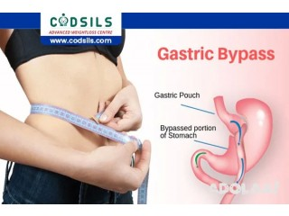 Mini Gastric Bypass Surgery | Weight Loss Surgery- Dr. Amit Garg