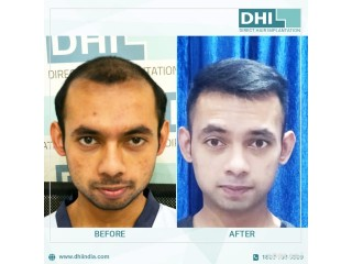 Best Hair Transplant Clinic in Chandigarh - DHI India