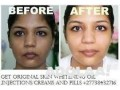 get-original-skin-whitening-oil-injectionscreams-and-pills-japan-platinum-call-27738432716-small-3