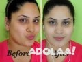 get-original-skin-whitening-oil-injectionscreams-and-pills-japan-platinum-call-27738432716-small-1