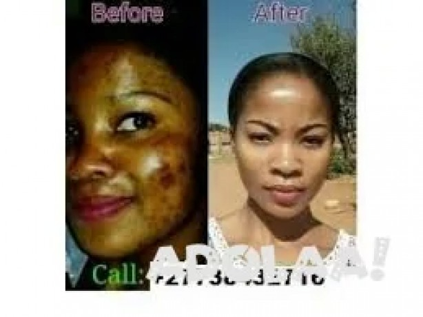 get-original-skin-whitening-oil-injectionscreams-and-pills-japan-platinum-call-27738432716-big-0