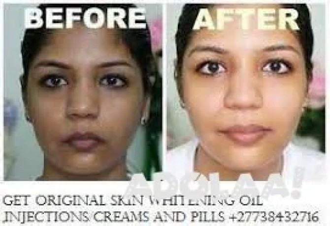 get-original-skin-whitening-oil-injectionscreams-and-pills-japan-platinum-call-27738432716-big-3