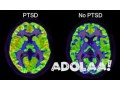 ptsd-research-small-0