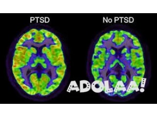 Ptsd research
